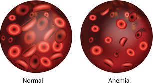Anemia – Causes, Types and Treatment